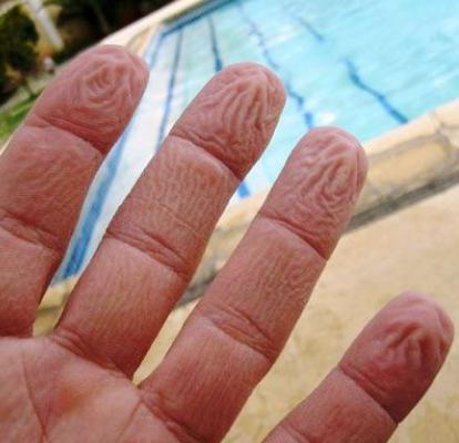 Los dedos se nos arrugan