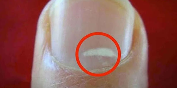 puntos blancos en las uñas