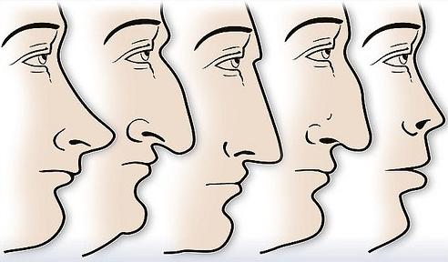 forma de la nariz