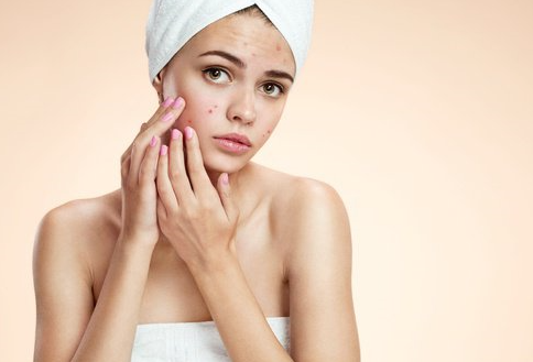 la verdadera causa del acné